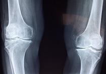 Российские ученые создали искусственную кость из полиэтилена и соли