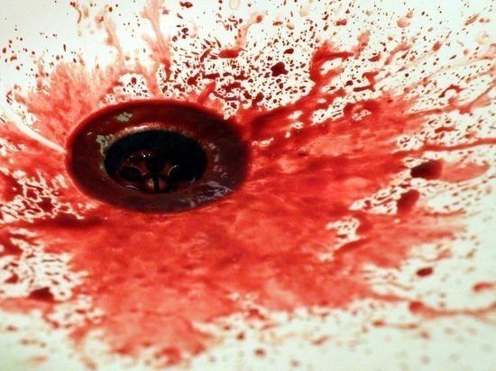 В Надыме женщина пырнула ножом сожителя и созналась в этом