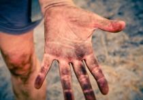 5 опасных причин онемения в пальцах