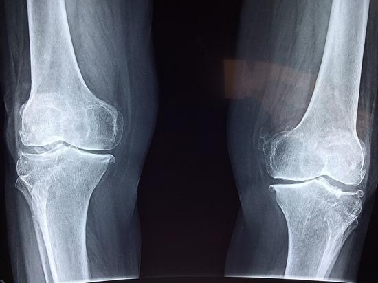 Медики: в чем опасность боли в коленях