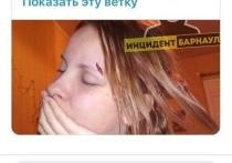 Мария Мотузная заявила, что ей разбили лицо и украли телефон