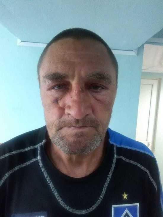 Полиция Магадана разыскивает человека со шрамом