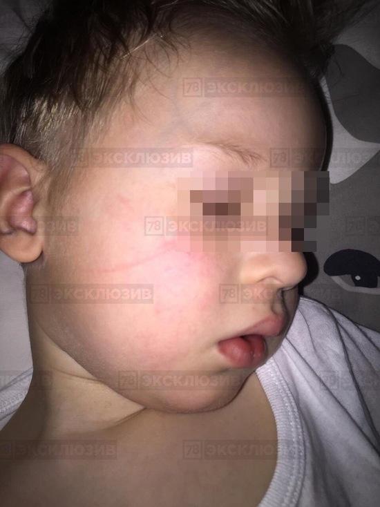 Двух воспитателей детсада на Моховой улице обвинили в избиении детей