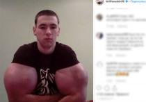 Кирилл Терешин из Пятигорска печально прославился, благодаря «рукам-базукам»: бицепсы парню заменили вколотые в руки вещества