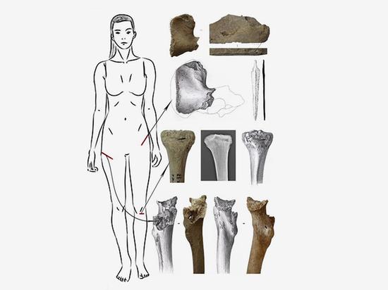 В Армении нашли «могилу амазонки»