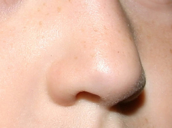 Ребенок год прожил с чудо-прокладкой в носу: выдал запах