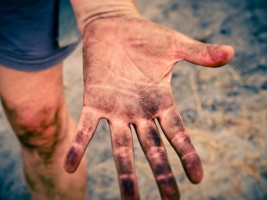 Пятна на коже человека могут указывать на рак крови