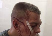 В Башкирии осужденный боксер-дебошир продолжает избивать жителей Стерлитамаке