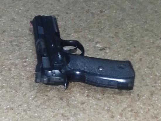 Подросток, прострелив себе руку, нашел пулю с помощью магнита