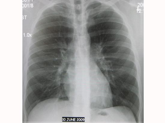 Обычный кашель может рассказать о хроническом заболевании