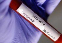 Германия: Тест на коронавирус в домашних условиях