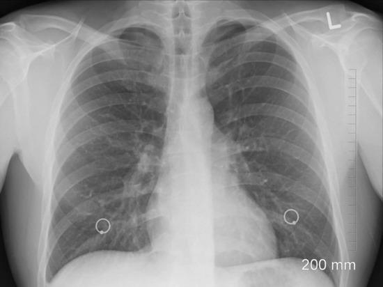 Пневмонию вызывает не коронавирус, а избыток железа