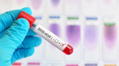 Леонид Солонухин о том, почему коронавирус может привести к инсульту