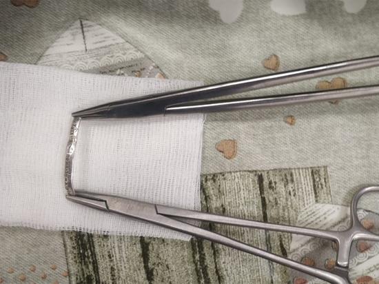 Московские хирурги сняли кольцо с полового органа 12-летнего мальчика