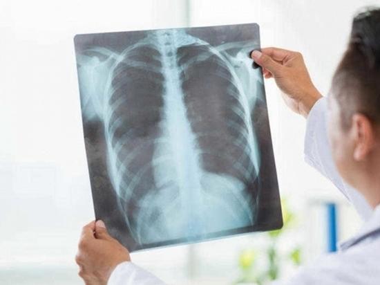 34 человека умерли от внебольничной пневмонии в Чувашии