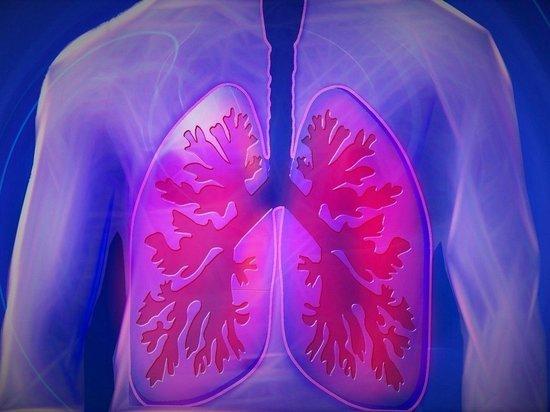 Изучение легких пациентов, умерших от COVID-19, выявило особенности