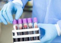 Разрабатываемая Оксфордским университетом вместе с фармацевтической компанией AstraZeneca вакцина против коронавируса имеет около 50% шансов на успех, заявил глава проекта в Оксфорде профессор Адриан Хилл