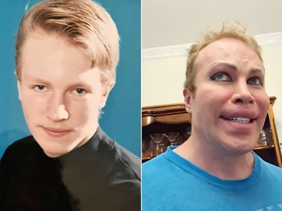 Блогер Саша Шпак показал, как выглядел до радикального изменения внешности