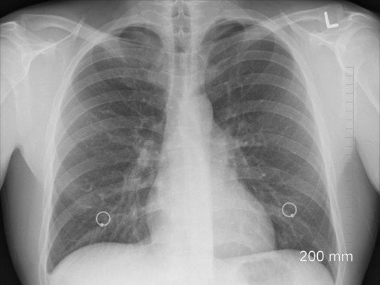 У половины тяжелых коронавирусных больных отсутствуют изменения в легких