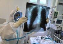 Патологоанатом назвал главные загадки коронавируса