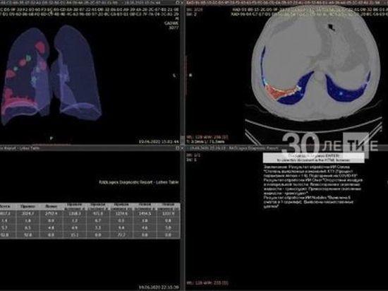 Система по выявлению патологий легких появится в двух больницах Казани