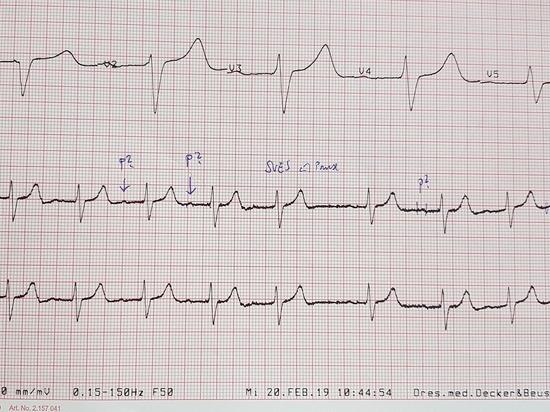 Признаки поражения сердечной мышцы наблюдались у и выживших, и у погибших