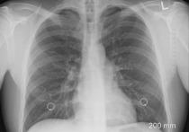 Врачи из Соединенного Королевства назвали внешний признак, который может указывать на онкологическое заболевание легких, пишет Express со ссылкой на Национальную службу здравоохранения (NHS)