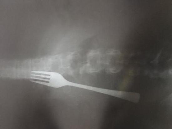 Пациентке провели операцию