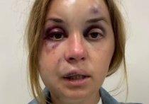 Украинскую телеведущую Анастасию Луговую избили и пытались изнасиловать в поезде Мариуполь- Киев прямо на глазах у сына