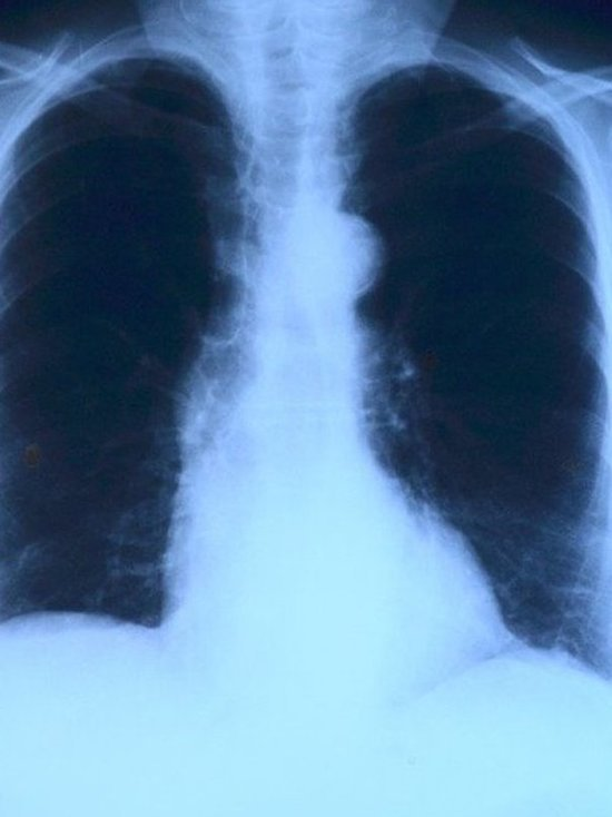 За год число внебольничных пневмоний в Татарстане выросло вдвое