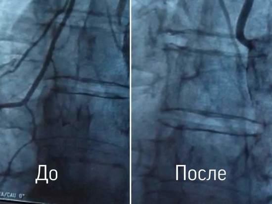 В Рязанской ОКБ провели операцию мужчине с раком легких