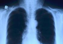 Пандемия COVID стала серьезным испытанием для систем здравоохранения