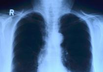Врач-пульмонолог Сергей Пурясев перечислил симптомы, сигнализирующие о  поражении легких