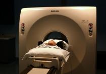 Жительница Австралии несколько лет лечилась от мигрени, пока не выяснила, что в ее мозге живут черви