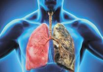 Рак легкого остается одной из главных проблем современной онкологии
