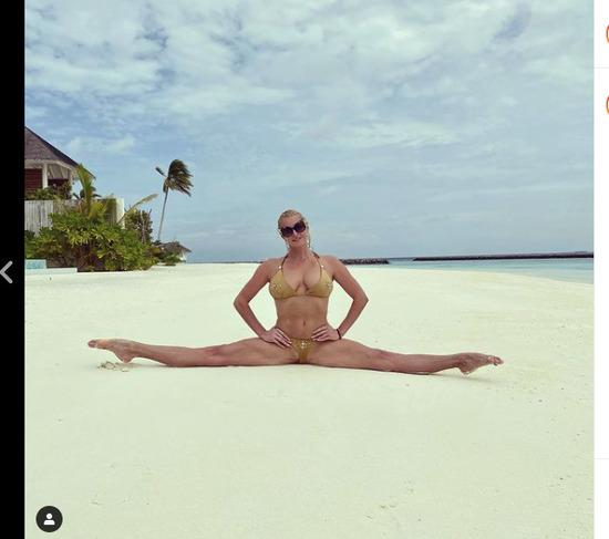 Волочкова выложила откровенное фото с результатом многолетних растяжек