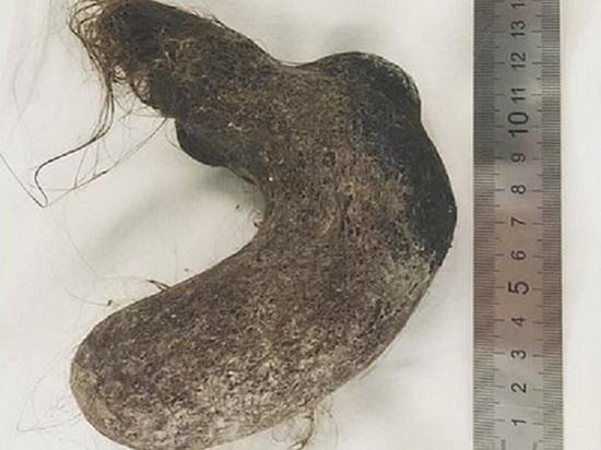 В Улан-Удэ из желудка девочки извлекли огромный клубок волос