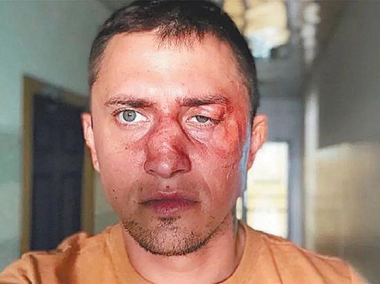 Известный российский актер Павел Прилучный дал развернутый комментарий по поводу своей госпитализации