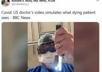 Врач из США смоделировал на видео в Твиттере то, что видят «в конце своей жизни» пациенты с COVID-19