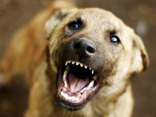 В Ангарске на 10-летнюю девочку напала собака