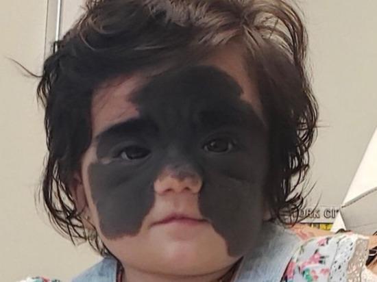 Мать маленькой американки Луны Феннер, ставшей известной благодаря огромному невусу – родимому пятну на лице, показала в Instagram фото с результатом операций