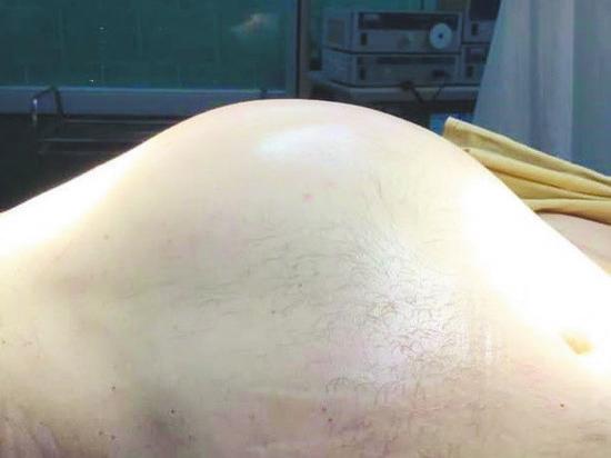 Из пациента удалили новообразование весом 12 килограммов