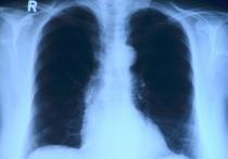 Облучать коронавирус слабыми дозами радиации предлагают узбекские и российские ученые