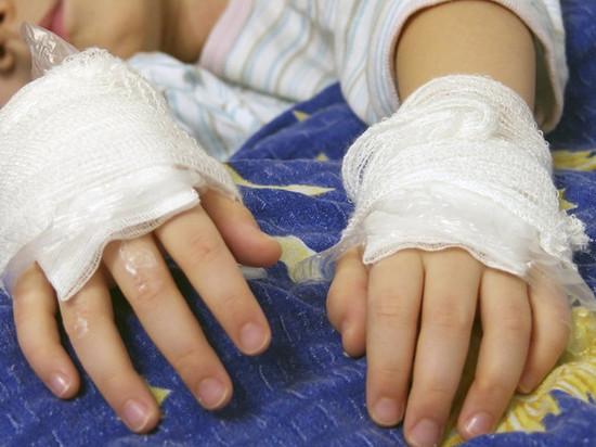 На Камчатке двое детей получили ожоги