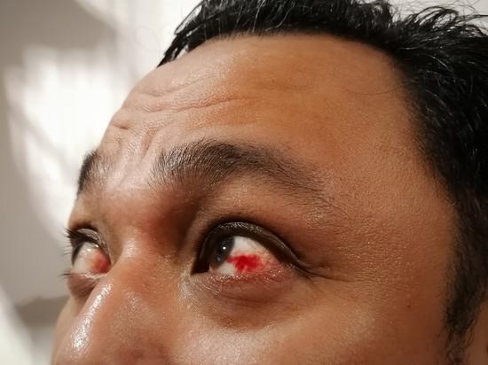 Ученые рассказали, как определить коронавирус по глазам
