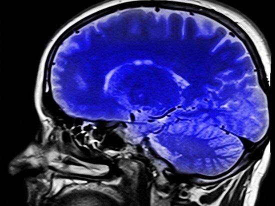 Россиянин заморозил мозг умершего отца чтобы оживить в будущем