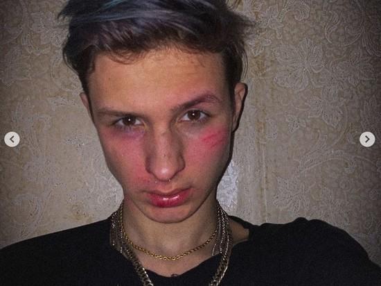 Задержанный за нападение на машину ФСБ тиктокер извинился на камеру