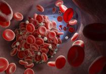 Исследование сосудов людей, скончавшихся от коронавируса, показало, что в капиллярах пожилых людей присутствует множество микротромбов