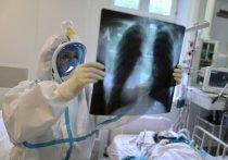 Одно из самых авторитетных в мире медицинских изданий, The Lancet, дал прогноз развития пандемии коронавируса по двум сценариям - пессимистическому и оптимистическому