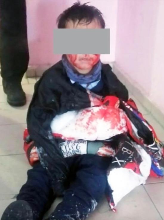 «Хочет все забыть»: у мальчика, искусанного собаками в Улан-Удэ, начались проблемы с памятью